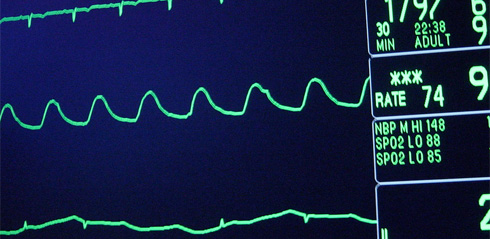 PHOTO: Heart Monitor